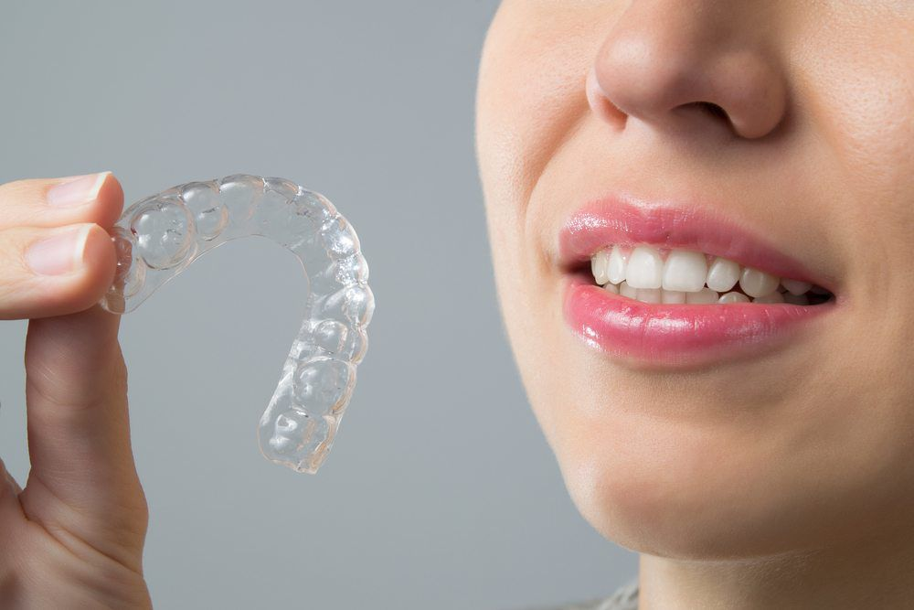 Invisalign - Oakhurst Dentist | Vincent M  Foring, D M D